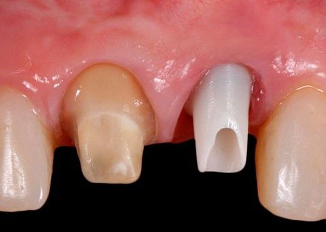 Excelencia estética en implantología