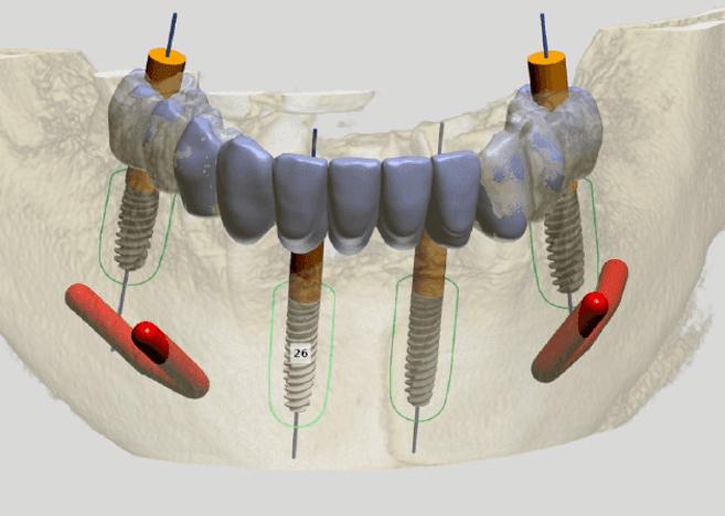 Implantología saludable y estética (Axiom Multilevel tour)